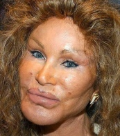 the-bride-of-wildenstein_8-reasons-to-avoid-cosmetic-surgery